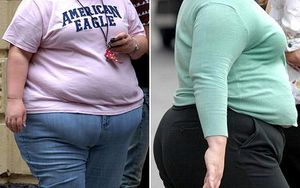 Obese-women_992046c